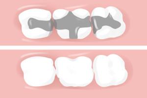dental-fillings (1)